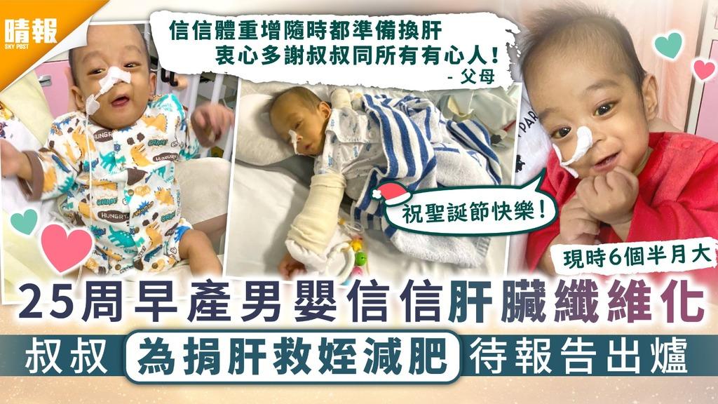 生命鬥士│25周早產男嬰信信肝臟纖維化 叔叔為捐肝救姪兒減肥待報告出爐