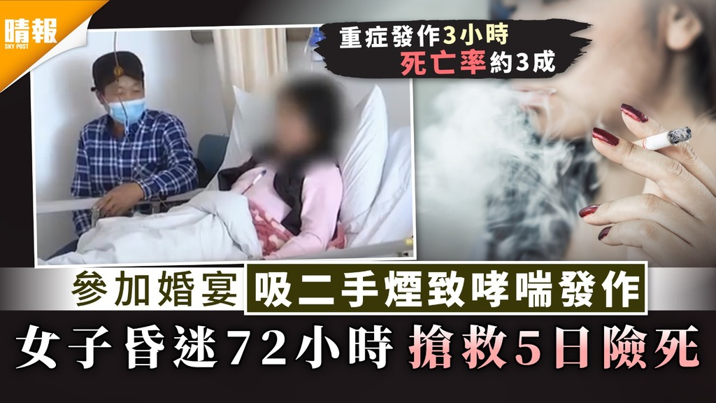 二手煙|參加婚宴吸二手煙致哮喘發作 女子昏迷72小時搶救5日險死