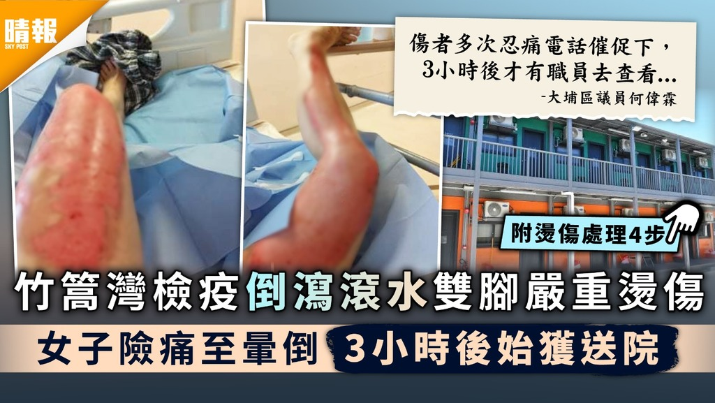 意外燙傷|竹篙灣檢疫倒瀉滾水雙腳嚴重燙傷 女子險痛至暈倒3小時後始獲送院|附燙傷處理4步