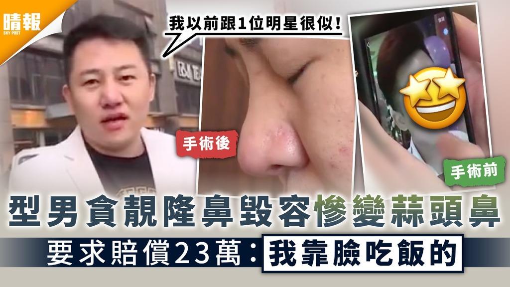 整容失敗|型男貪靚隆鼻毀容慘變蒜頭鼻 要求賠償23萬:我靠臉吃飯的