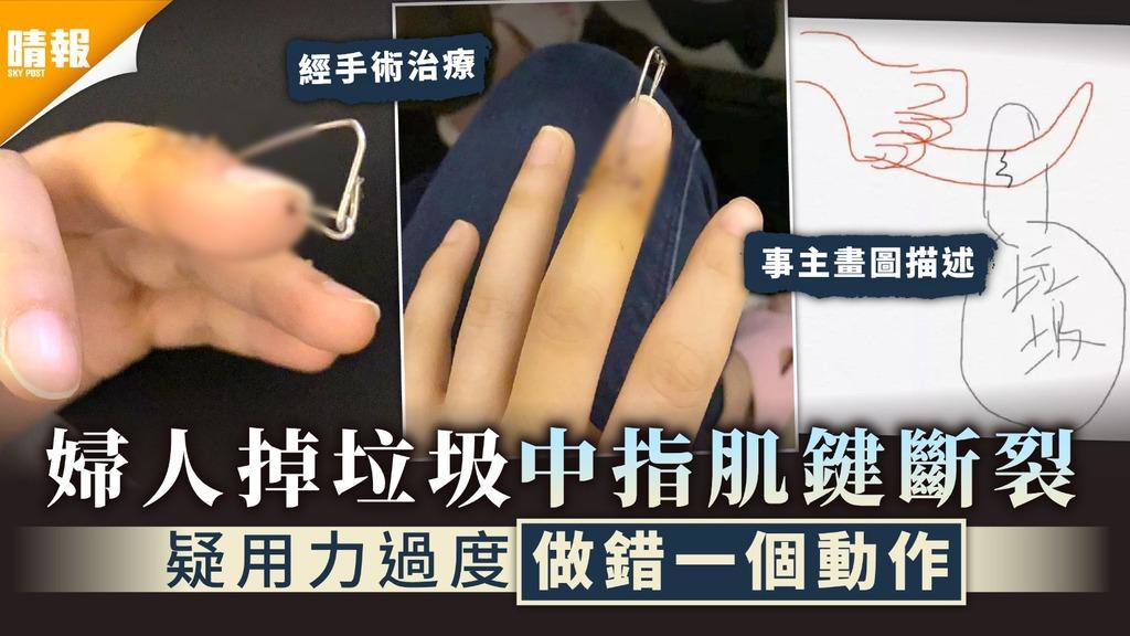家居意外︳婦人扔垃圾中指肌鍵斷裂 疑用力過度做錯一個動作