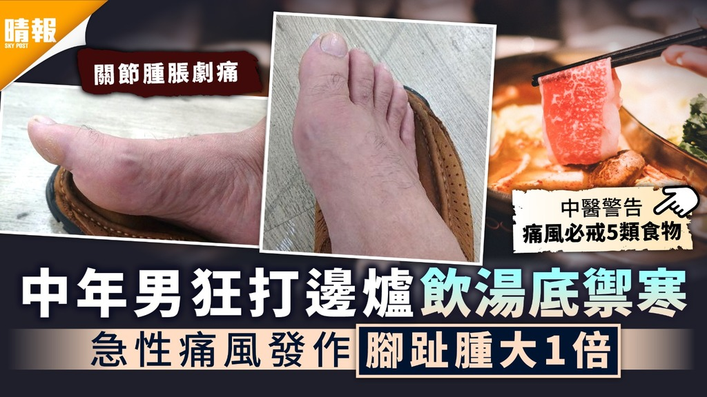 冬天飲食|中年男狂打邊爐飲湯底禦寒 急性痛風發作腳趾腫大1倍