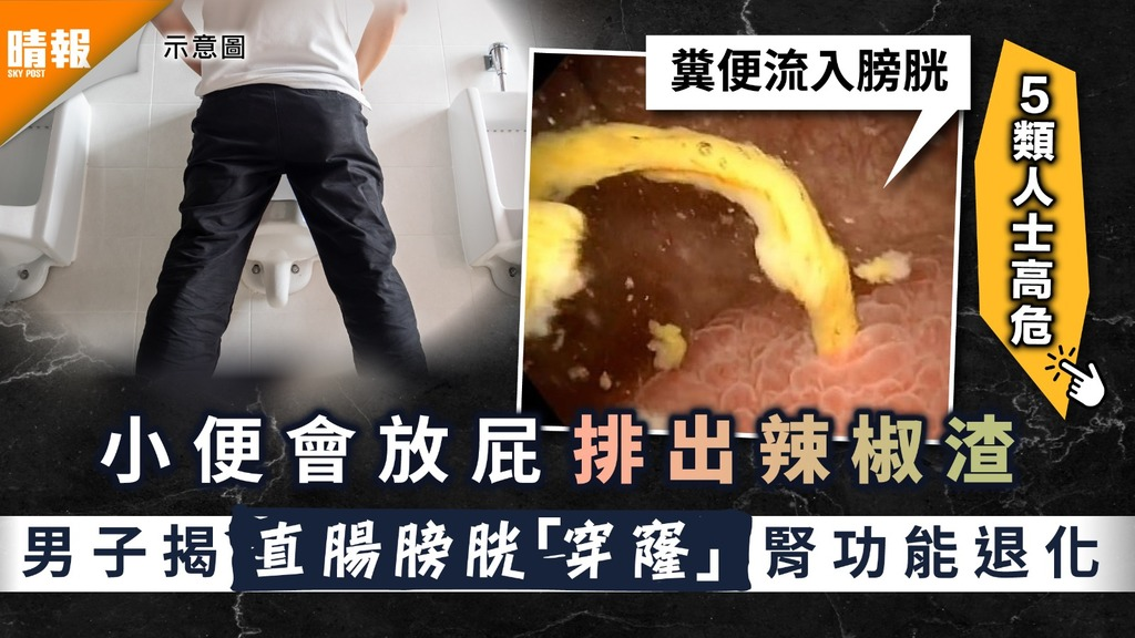小便有泡|小便會放屁排出辣椒渣 男子揭直腸膀胱「穿窿」腎功能退化