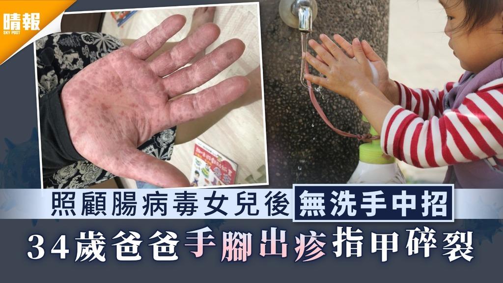 家長注意 照顧腸病毒女兒後無洗手中招 34歲爸爸手腳出疹指甲碎裂