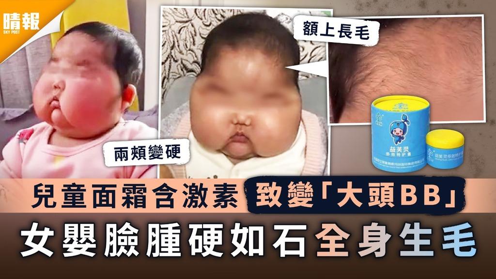 家長注意|兒童面霜含激素致變「大頭BB」 女嬰臉腫硬如石全身生毛