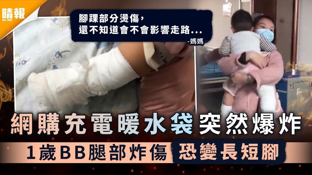 家居安全︳網購充電暖水袋突然爆炸 1歲BB腿部炸傷恐變長短腳