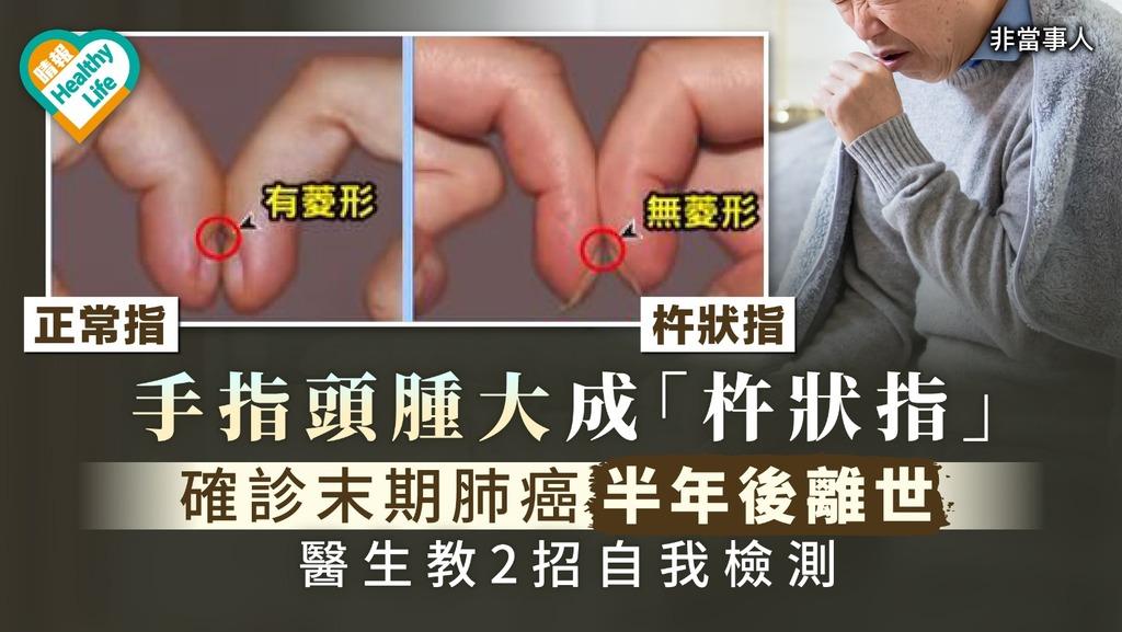 無聲殺手| 手指頭腫大成「杵狀指」 確診末期肺癌半年後離世【醫生教2招自我檢測】