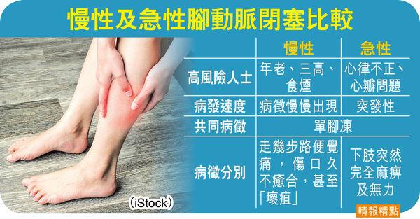 單足感冰冷兼疼痛 恐腳動脈閉塞