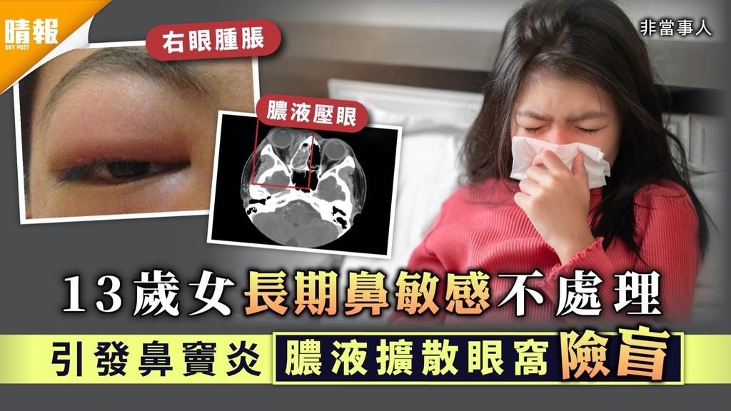 鼻竇炎 13歲女長期鼻敏感不處理 引發鼻竇炎膿液擴散眼窩險盲 4大鼻竇炎小知識
