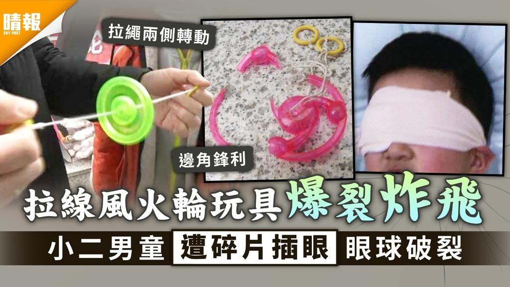 家長注意|拉線風火輪玩具爆裂炸飛 小二男童遭碎片插眼眼球破裂