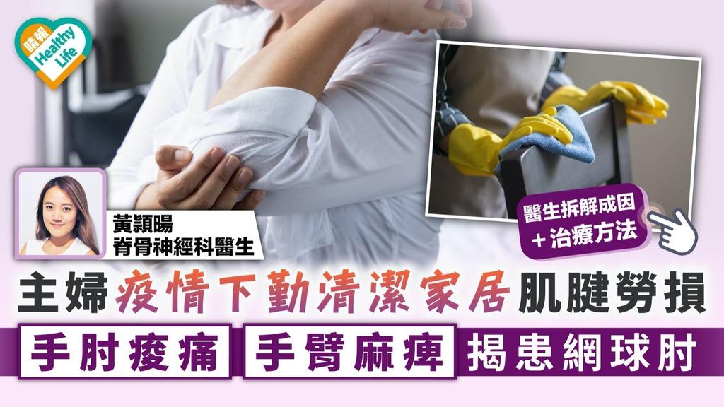 網球肘|主婦疫情下勤清潔家居肌腱勞損 手肘痠痛手臂麻痺揭患網球肘
