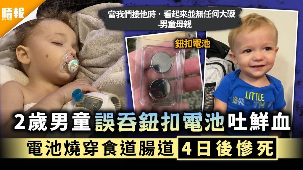 家長小心|2歲男童誤吞鈕扣電池吐鮮血 電池燒穿食道腸道4日後慘死