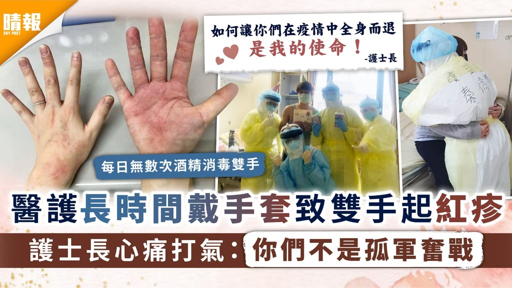新冠肺炎|醫護長時間戴手套致雙手起紅疹 護士長心痛打氣:你們不是孤軍奮戰