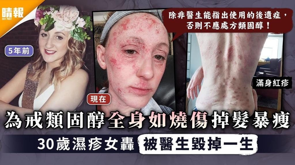 類固醇上癮| 為戒類固醇全身如燒傷掉髮暴瘦 30歲濕疹女轟被醫生毀掉一生