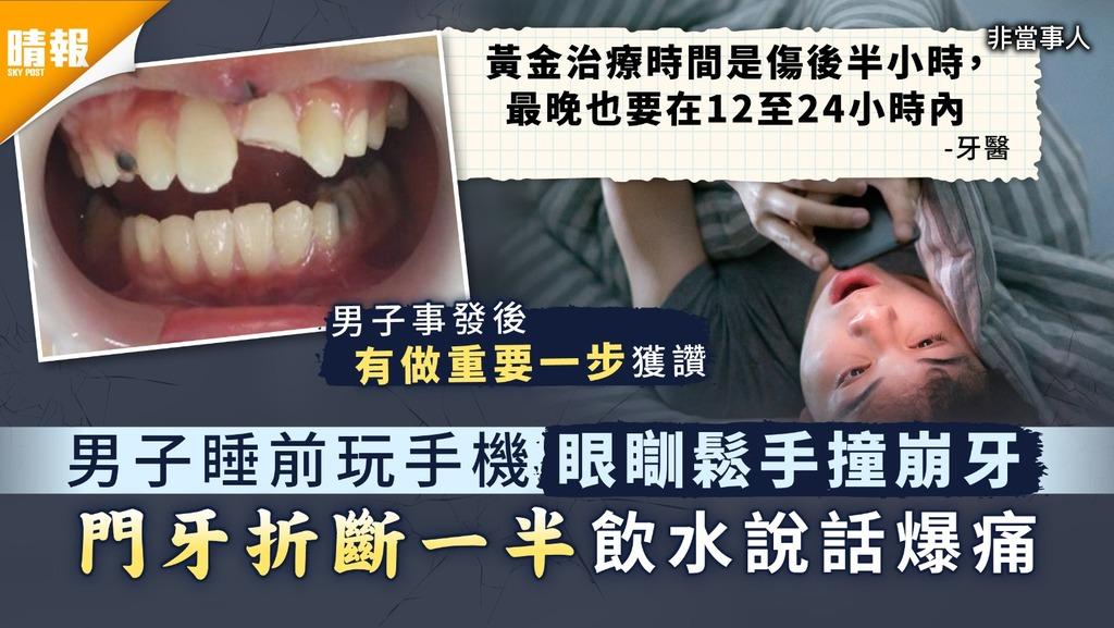 撞斷門牙|男子睡前玩手機眼瞓鬆手撞崩牙 門牙折斷一半飲水說話爆痛