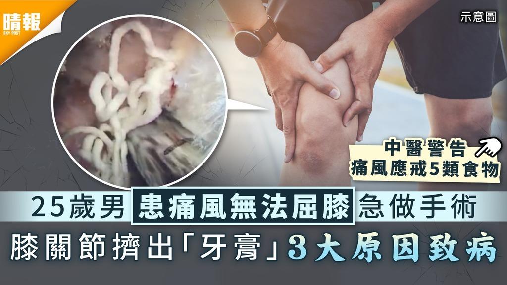 痛風年輕化|25歲男患痛風無法屈膝急做手術 膝關節擠出「牙膏」3大原因致病|附5類必戒食物