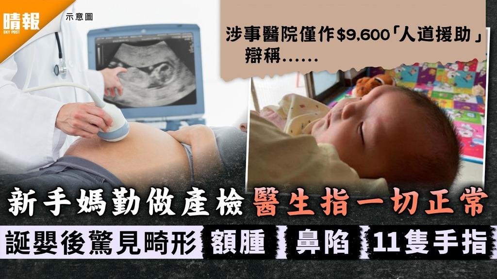 心痛欲絕 新手媽勤做產檢醫生指一切正常 誕嬰後驚見畸形額腫鼻陷11隻手指