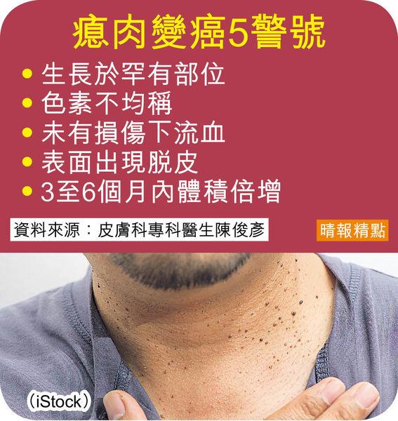 皮膚瘜肉變大兼流血 癌症警號