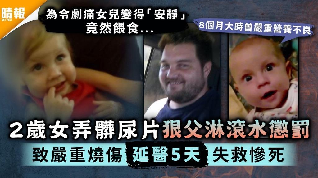 變態虐兒|2歲女弄髒尿片狠父淋滾水懲罰 致嚴重燒傷延醫5天失救慘死