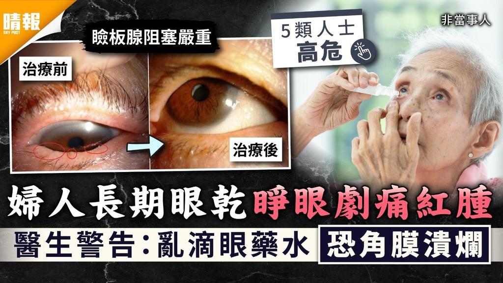 乾眼症|婦人長期眼乾睜眼劇痛紅腫 醫生警告:亂滴眼藥水恐角膜潰爛|4招預防乾眼症