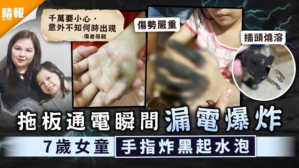 家長注意|拖板通電瞬間漏電爆炸 7歲女童手指炸黑起水泡