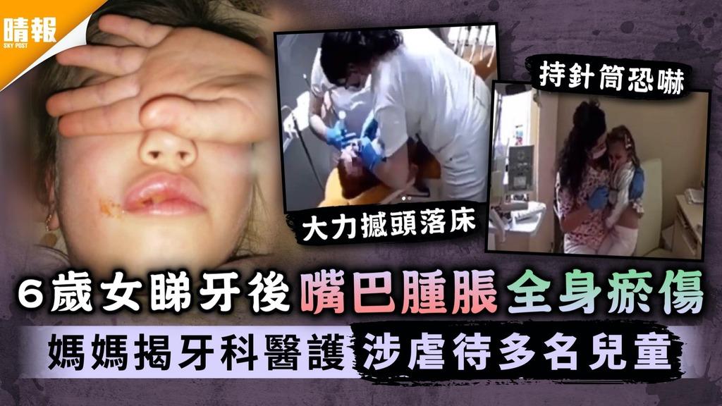 恐怖虐兒|6歲女睇牙後嘴巴腫脹全身瘀傷 媽媽揭牙科醫護涉虐待多名兒童