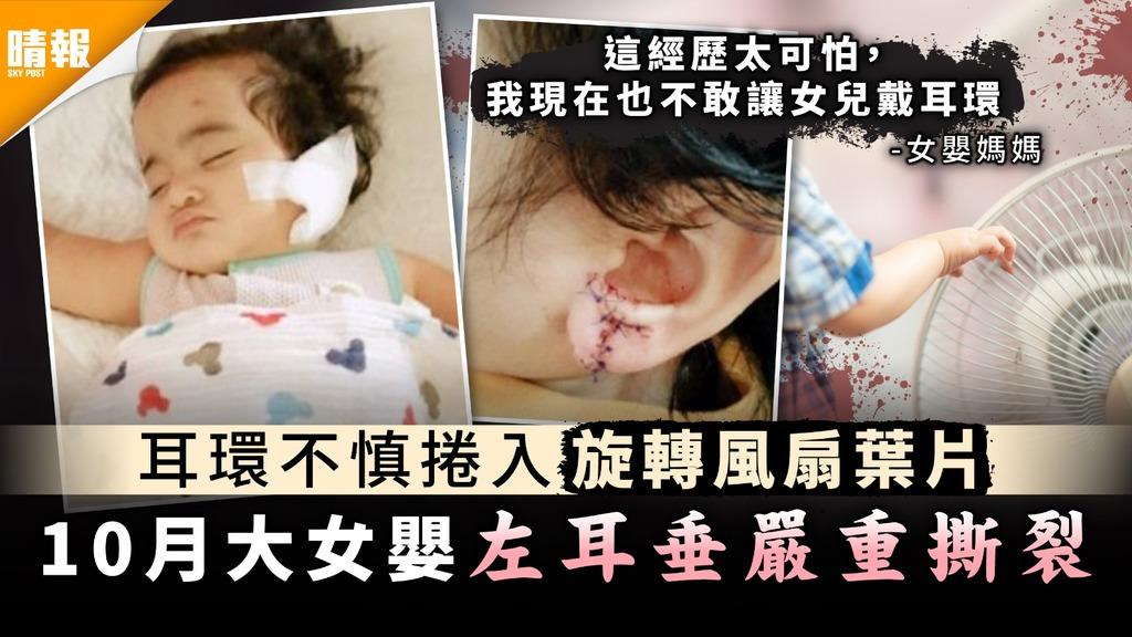 家長注意|耳環不慎捲入旋轉風扇葉片 10月大女嬰左耳垂嚴重撕裂