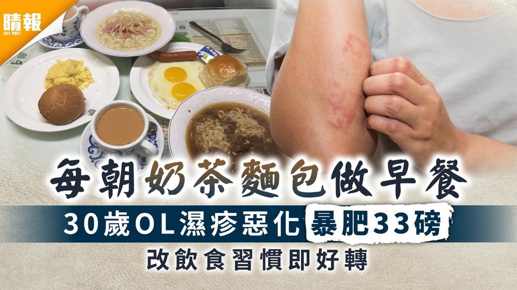 濕疹治療|每朝奶茶麵包做早餐 30歲OL濕疹惡化暴肥33磅 改飲食習慣即好轉