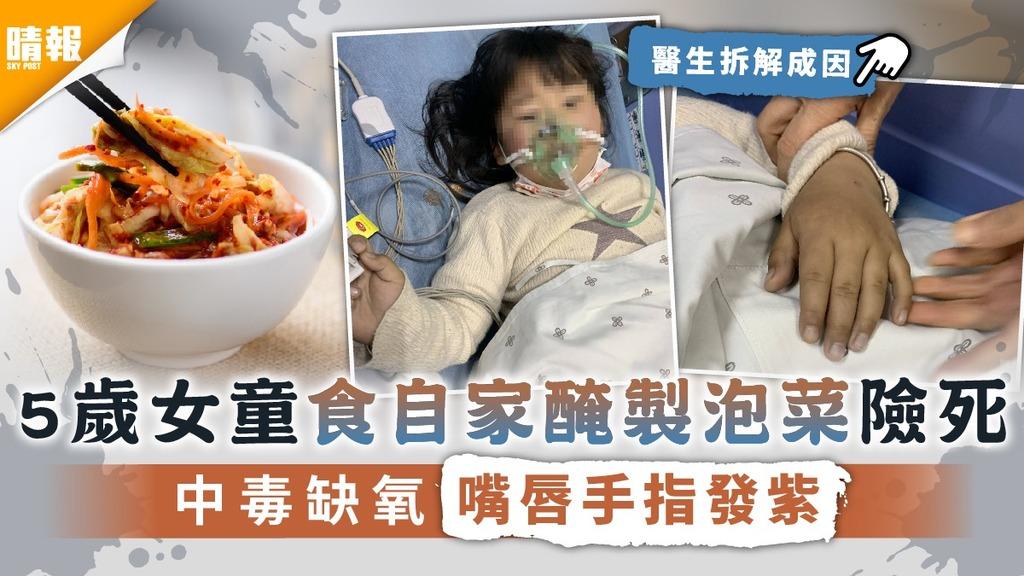 DIY醃泡菜︳5歲女童食自家醃製泡菜險死 中毒缺氧嘴唇手指發紫【附減低風險4招】