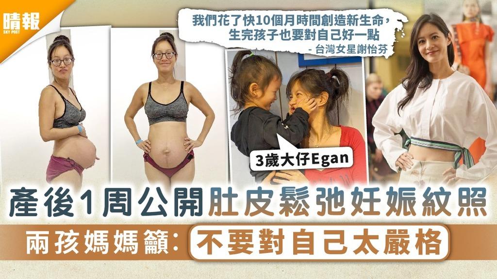 母愛偉大|產後1周公開肚皮鬆弛妊娠紋照 兩孩媽媽籲︰不要對自己太嚴格