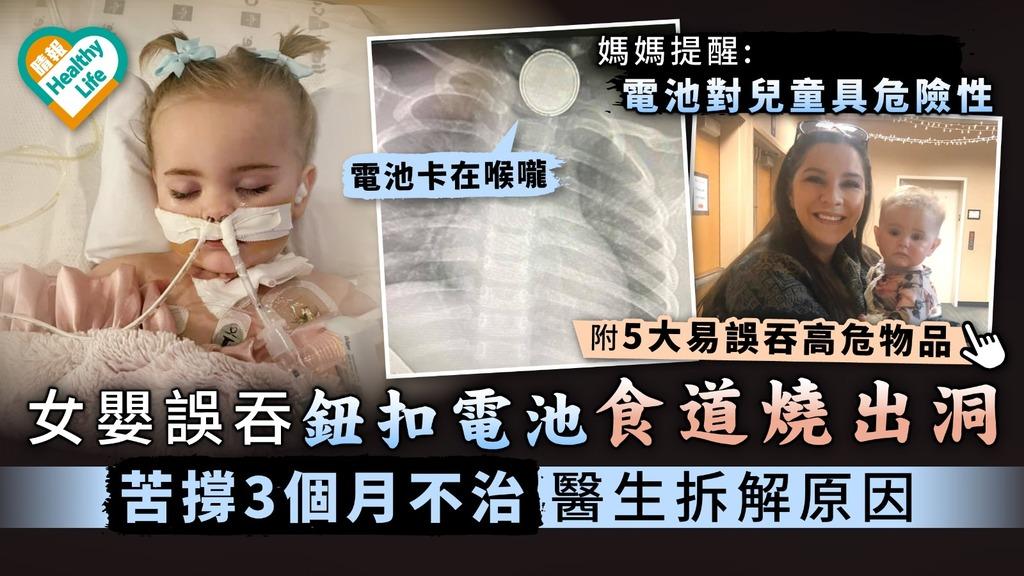 家長注意|女嬰誤吞鈕扣電池食道燒出洞 苦撐3個月不治醫生拆解原因