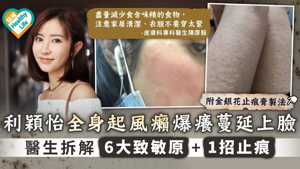 潮濕回南天|利穎怡全身起風癩爆痕蔓延上臉 醫生拆解6大致敏原+1招止痕