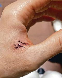 鉸剪插手噴血縫針 容祖兒自嘲要幾蠢有幾蠢