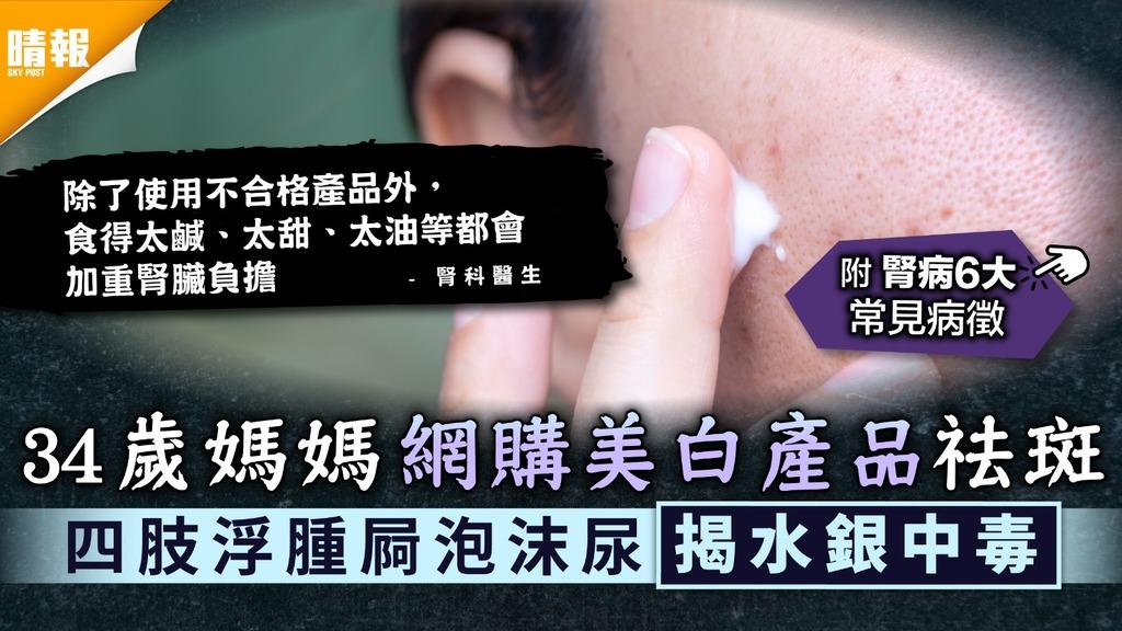 美白護膚|34歲媽媽網購美白產品祛斑 四肢浮腫屙泡沫尿揭水銀中毒