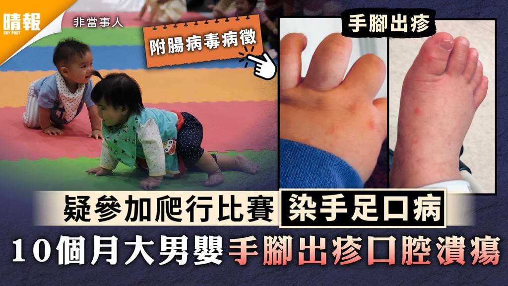 手足口病 疑參加爬行比賽染手足口病 10個月大男嬰手腳出疹口腔潰瘍