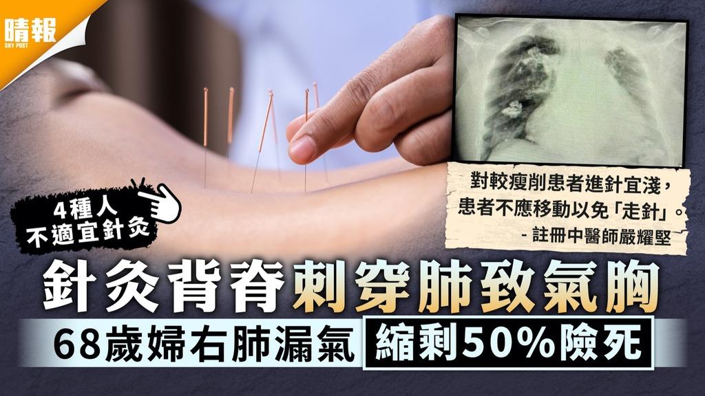 針灸穿肺|針灸背脊刺穿肺致氣胸 68歲婦右肺漏氣縮剩50%險死