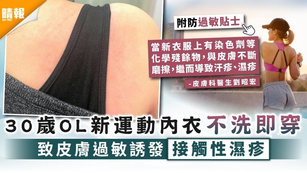 誘發濕疹 30歲OL新運動內衣不洗即穿 致皮膚過敏誘發接觸性濕疹