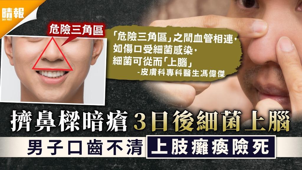 危險三角區|擠鼻樑暗瘡細菌上腦致顱內感染 46歲男口齒不清上肢癱瘓險死