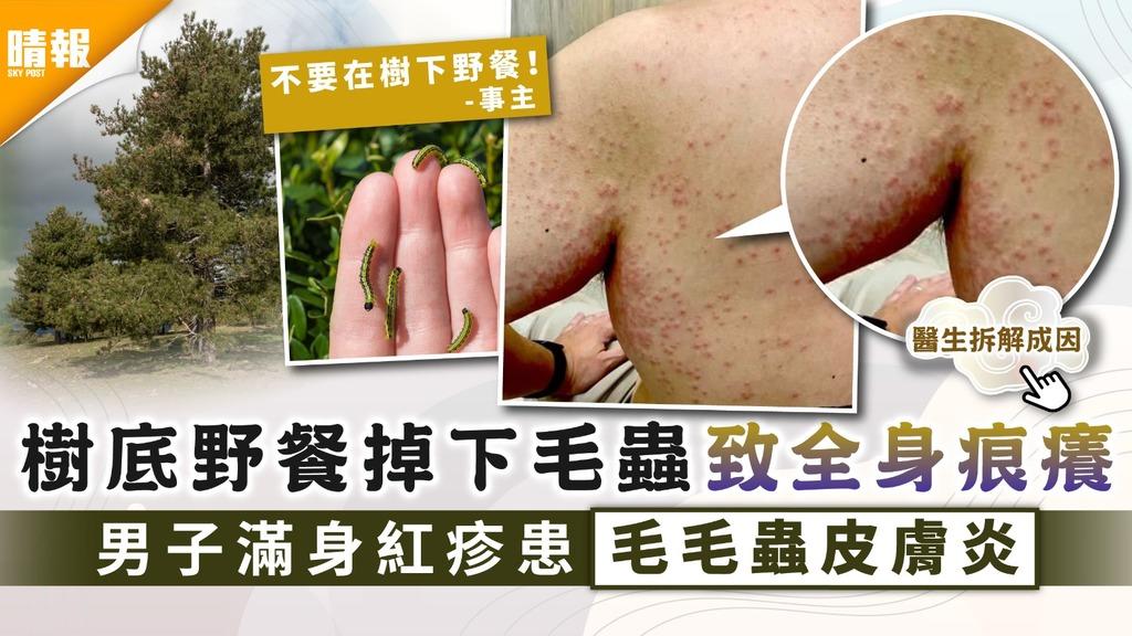 接觸性皮膚炎 樹底野餐掉下毛蟲致全身痕癢 男子滿身紅疹患毛毛蟲皮膚炎 6招預防