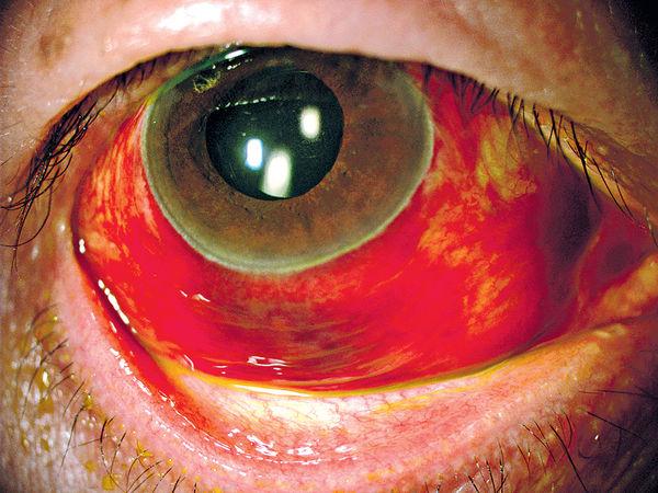 眼睛爆血管