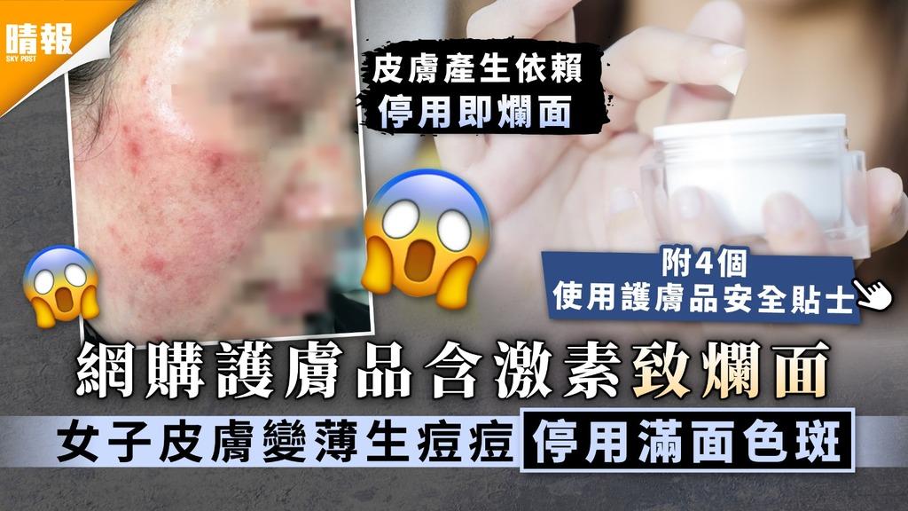無良商家|網購護膚品含激素致爛面 女子皮膚變薄生痘痘停用滿面色斑