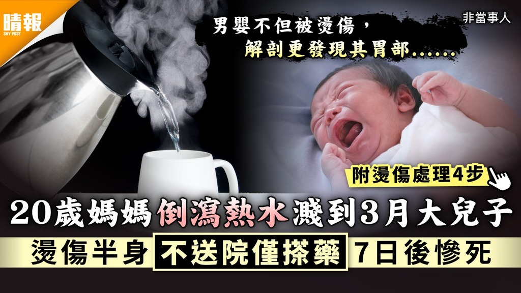 家長注意|20歲媽媽倒瀉熱水濺到3月大兒子 燙傷半身不送院僅搽藥7日後慘死|附燙傷處理4步