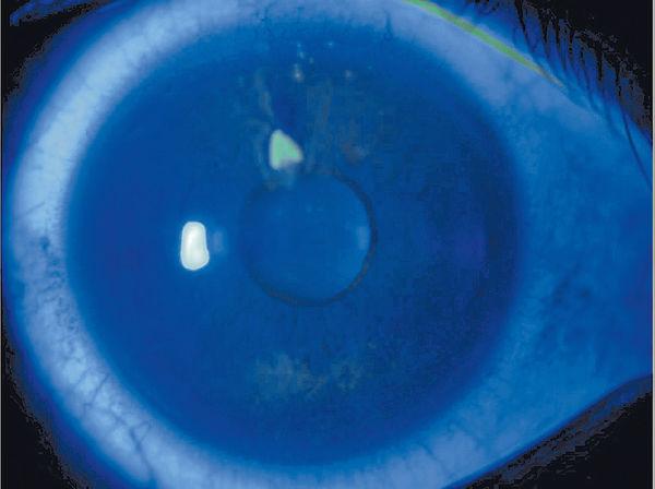 刮傷眼角膜小心反覆糜爛