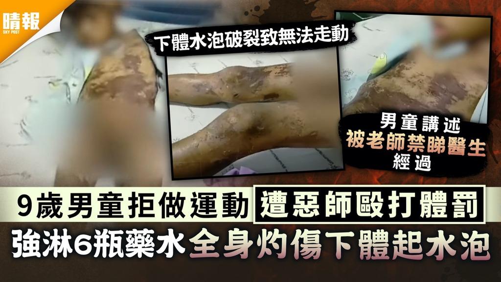 虐待兒童|9歲男童拒做運動遭惡師毆打體罰 強淋6瓶藥水全身灼傷下體起水泡