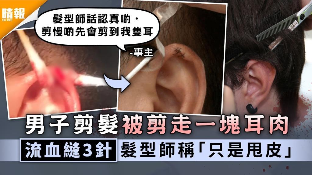 剪髮受傷|男子剪髮被剪走一塊耳肉 流血縫3針髮型師稱「只是甩皮」