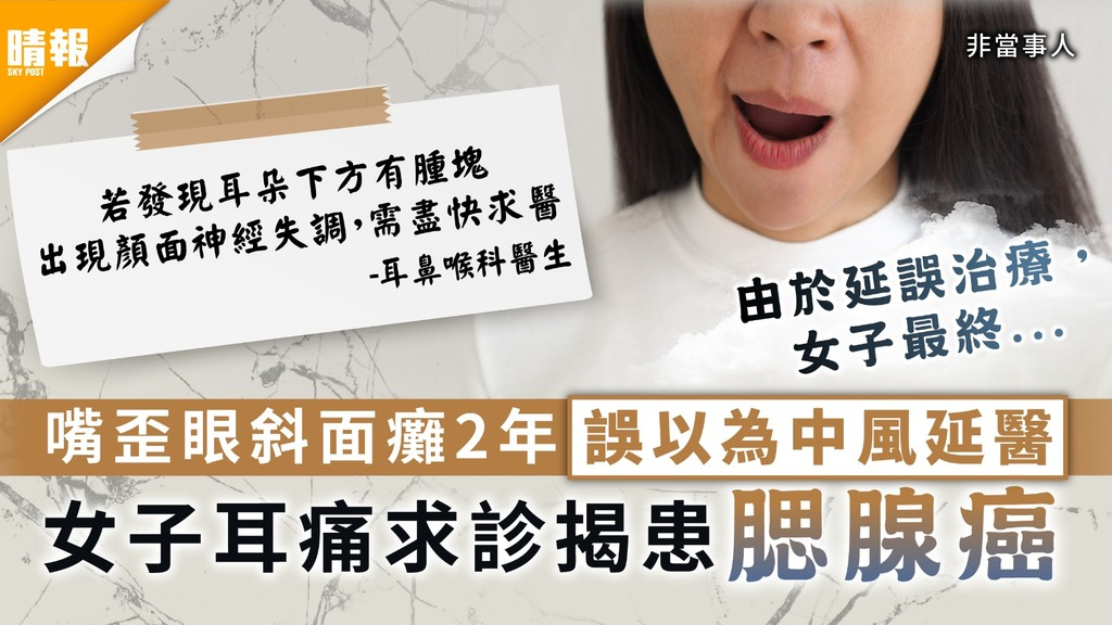 腮腺癌 | 嘴歪眼斜面癱2年誤以為中風延醫 女子耳痛求診揭患腮腺癌