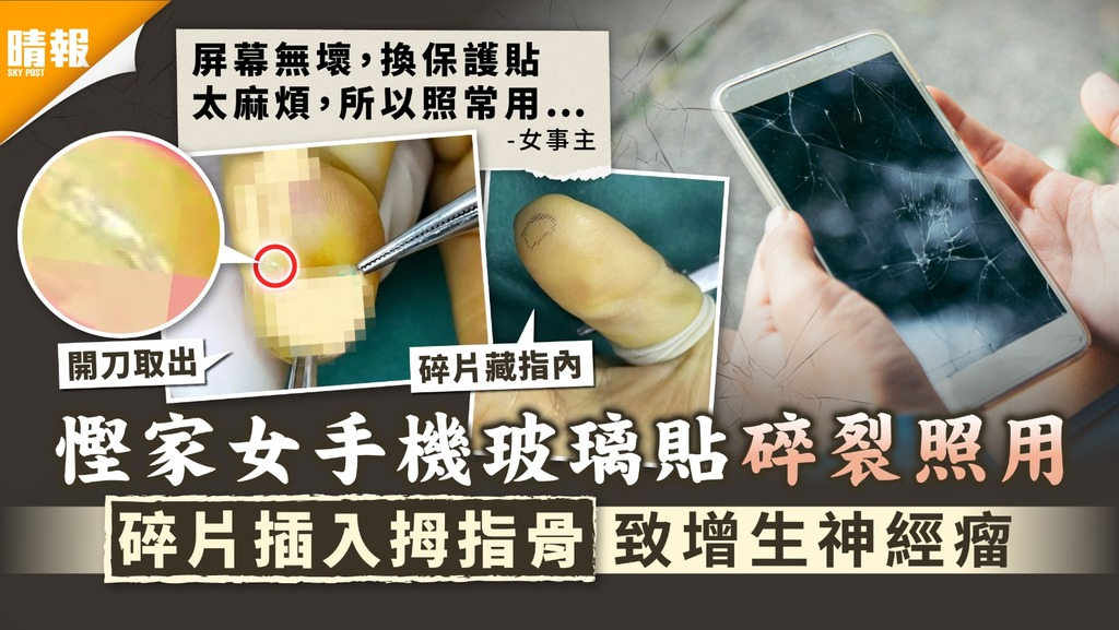 慳錢出事|慳家女手機玻璃貼碎裂照用 碎片插入拇指骨致增生神經瘤