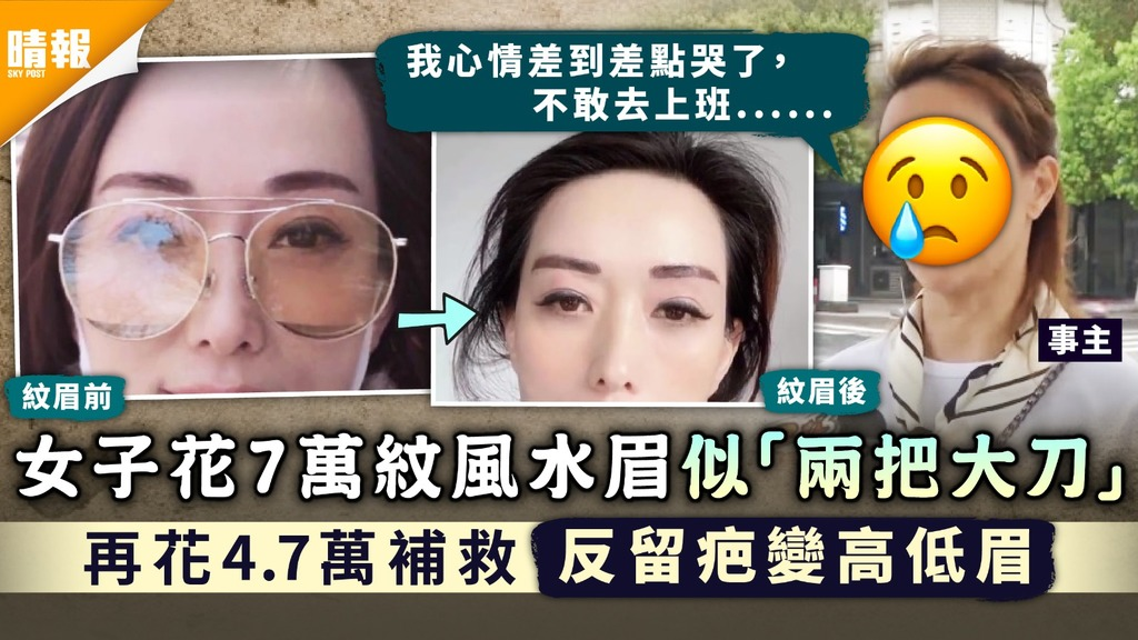 紋眉失敗 女子花7萬紋風水眉似「兩把大刀」 再花4.7萬補救反留疤變高低眉