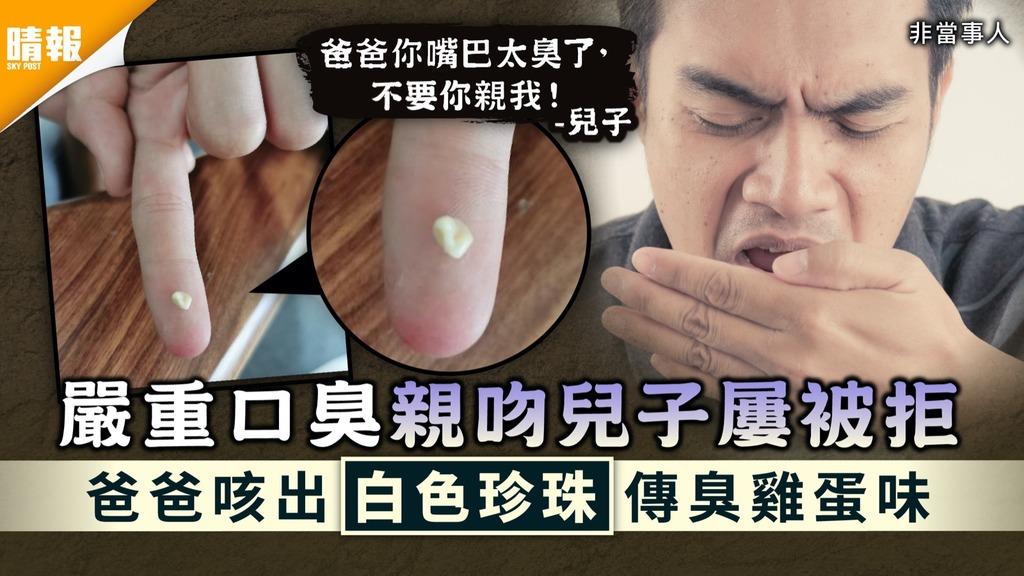 扁桃腺結石|嚴重口臭親吻兒子屢被拒 爸爸咳出「白色珍珠」傳臭雞蛋味【附預防方法】