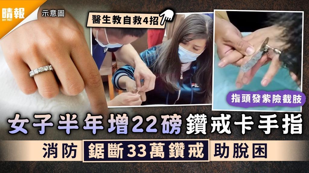 戒指卡死|女子半年增22磅鑽戒卡手指 消防鋸斷33萬鑽戒助脫困
